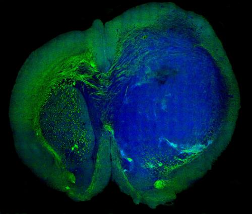 A new view of brain tumors