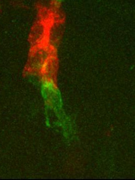 A study on cell migration provides insights into the movement of cancer cells