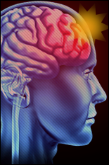 A unique look into mild traumatic brain injuries