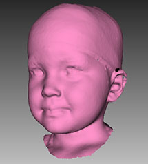 Researchers design respirators for children with neuromuscular diseases