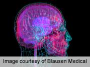 Bipolar disorder drugs may 'Tweak' genes affecting brain