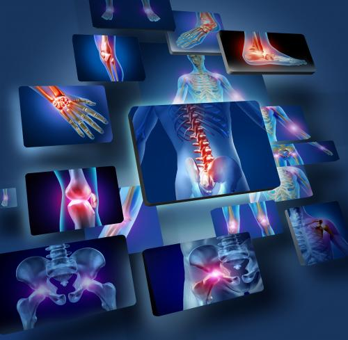 Researchers investigate bone substitute from synthetic materials