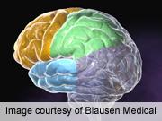 Brain atrophy seen in patients with diabetes