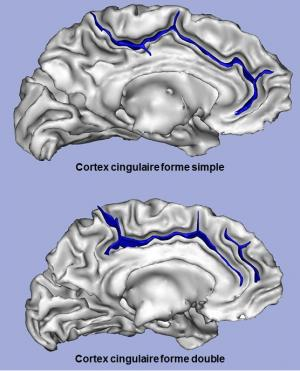 Brain shape affects children's learning capacities