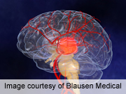 Brain-training device may ease stroke paralysis