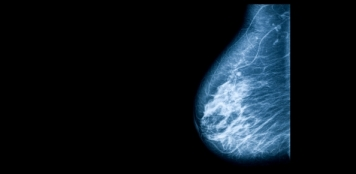 Breast conserving treatment with radiotherapy reduces risk of local recurrence