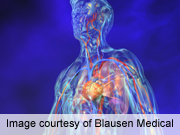 Burden of heart disease, stroke quantified in united states