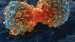 Cancer: Unraveling a mechanism behind cellular proliferation