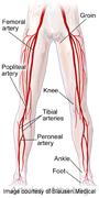 Cardiac autonomic dysfunction is linked to arterial stiffness