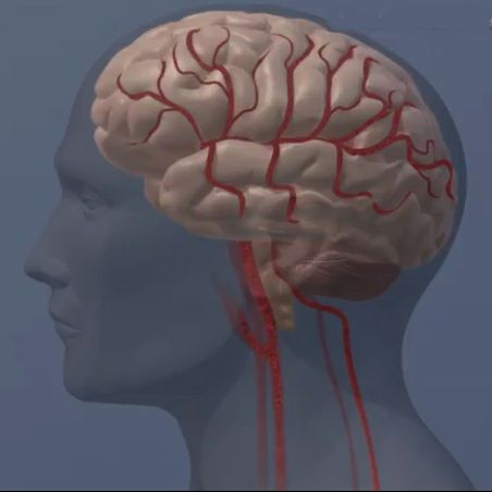Carotid bypass surgery doesn't help cognitive performance after stroke
