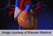 CDC: 200,000 avoidable deaths from cardiovascular disease