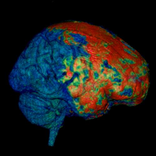 Concussion secrets unveiled in mice and people