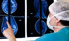 'Critical gaps' in breast cancer research