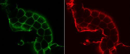 'Diabetic flies' can speed up disease-fighting research