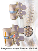 Discectomy post-op pain worse in patients with retrolisthesis