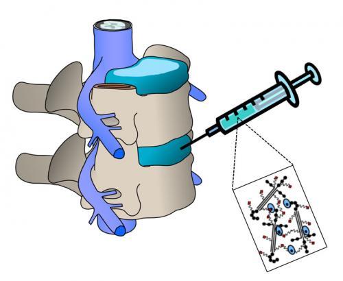 Duke bioengineers develop new approach to regenerate back discs