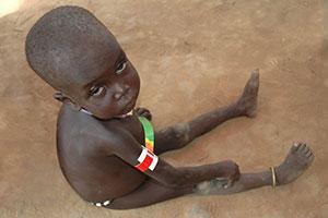 Effective supplements to benefit malnourished children worldwide