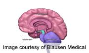 Electrical brain stimulation plus drug fights depression: study