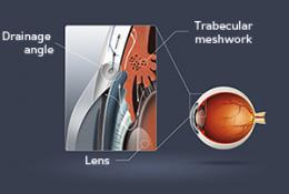 Eye disease: Opening our eyes to glaucoma