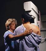 False-positive mammograms can trigger long-term distress