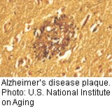 FDA wants to relax approval process for alzheimer's drugs
