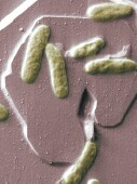 Fecal 'Transplant' to cure gut infection?