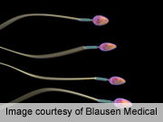 FSH, inhibin B poor predictors of sperm count after cancer