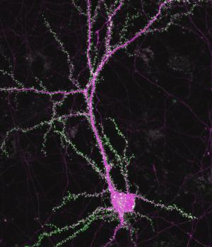 Gene found to foster synapse formation in the brain