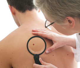 Gene identified in some melanoma linked to increased resistance to treatment