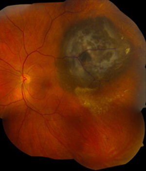Gene in eye melanomas linked to good prognosis