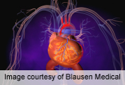 Gene therapy may activate stem cells in heart failure patients