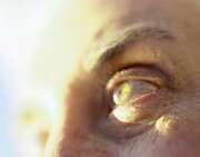 Glaucoma screening not for everyone: experts