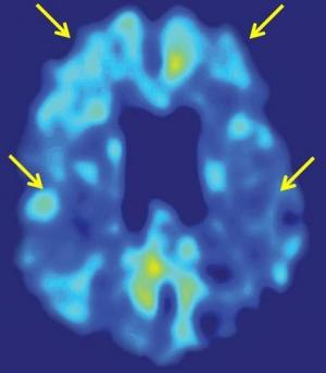 UCLA brain-imaging tool and stroke risk test help identify cognitive decline early