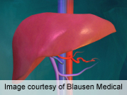 Increase in proportion of livers not used for transplantation