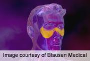 Kidney involvement, high anti-dsDNA predict lupus flares