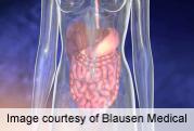 Long-term dietary fiber intake linked to crohn's disease