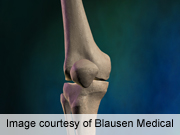 Lower cuff pressure reduces wound complications in TKA