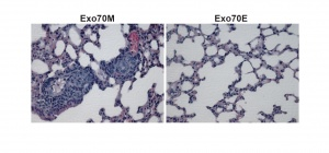 One protein, two personalities: Study identifies new mechanism of cancer spread