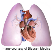 Macitentan cuts morbidity, death in pulmonary arterial HTN