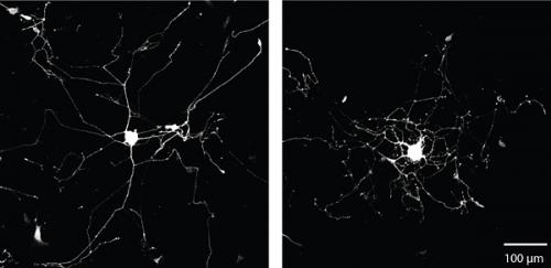 Making axons branch and grow to help nerve regeneration after injury