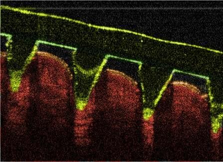 Microneedle OCT image