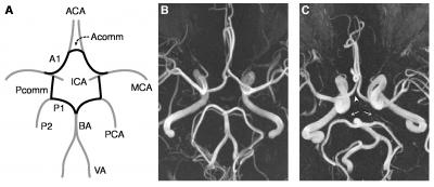 Migraine is associated with variations in structure of brain arteries