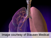 Model more accurately predicts lung cancer risk