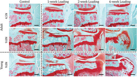 Model recreates wear and tear of osteoarthritis