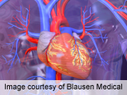 Most cardiac patients report using alternative treatments
