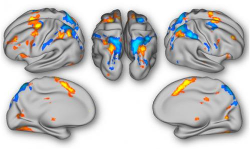 To predict, perchance to update: Neural responses to the unexpected