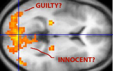Predicting repeat offenders with brain scans: You be the judge