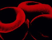 Pricey new blood thinner might be safer for leg clots