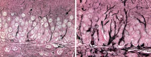 Rare disease yields clues about broader brain pathology