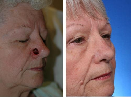 Repairing the nose after skin cancer in just one step